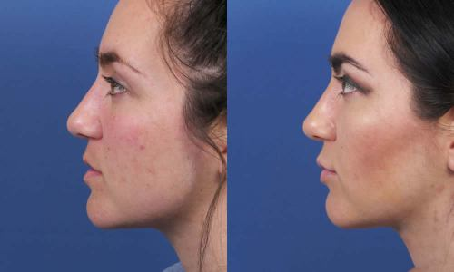 Lip20LateralBeforeAfter