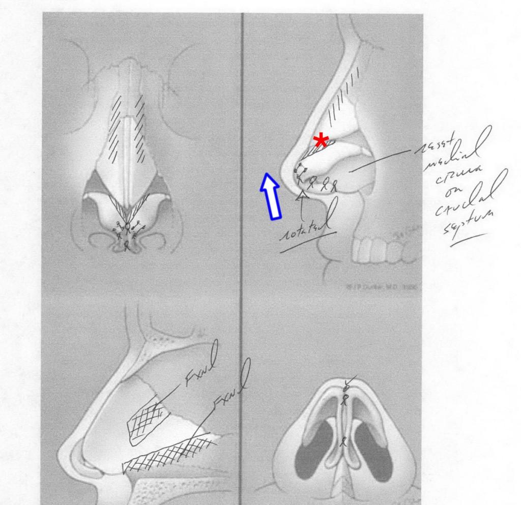 Droopy Nasal Tip Rhinoplasty