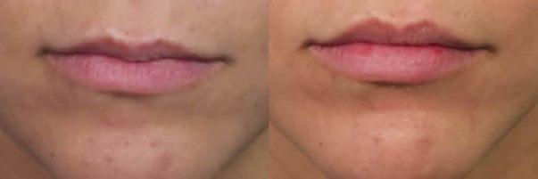 Lip19FrontalHorizBA
