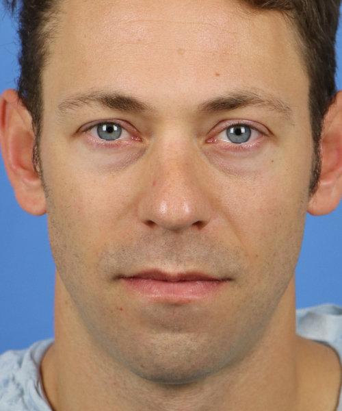 Chin Implant with Rhinoplasty
