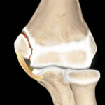 Youth Injury Series: Growth-Plate Injuries