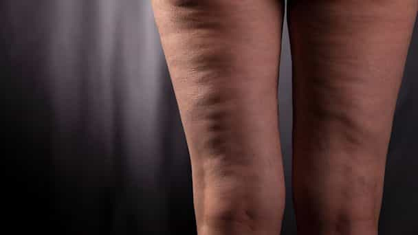 Cellulite Disease Causes, Treatment And Prevention