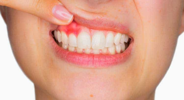 Home Remedies To Treat Swollen Gums