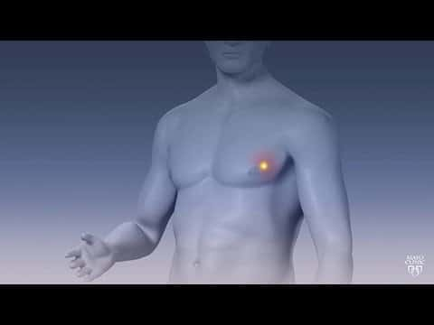 Breast Cancer in men: men have breast cancer due to these 4 reasons, know the method of treatment
