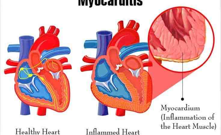 Myocarditis: Symptoms, Causes and Treatments
