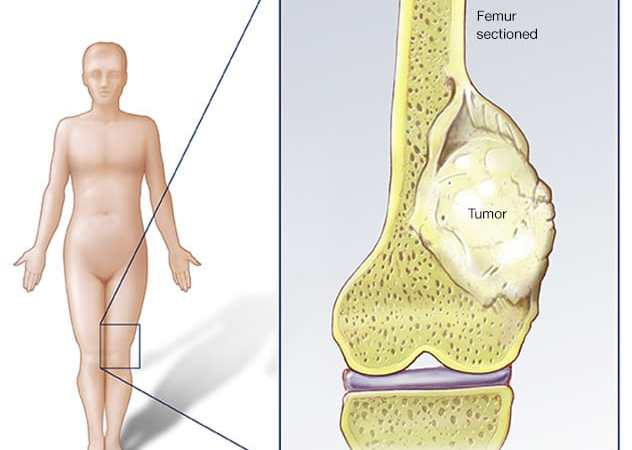 Osteosarcoma Cancer: Diagnosis, Treatment & Research