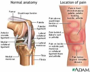 Anterior knee pain is pain that occurs in the front of the knee