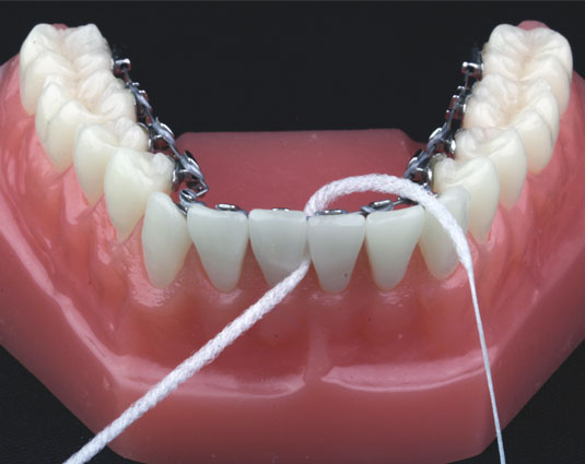 Ortodoncia Fija Dr. Martín Pedernera - Ortodoncia Barcelona, España