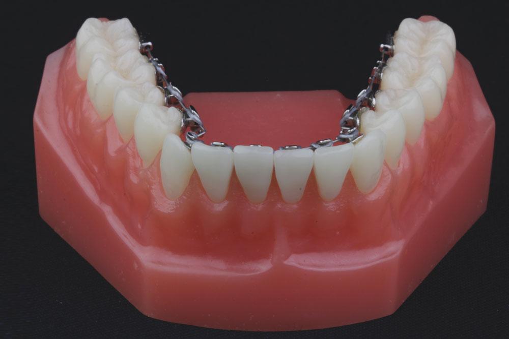 Ortodoncia Lingual _ Pacientes - Dr Martin Pedernera