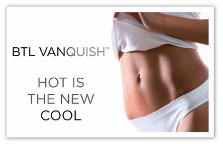 Vanquish 1