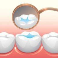 sealant for teeth