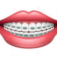 braces for teeth