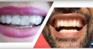 home teeth straightening