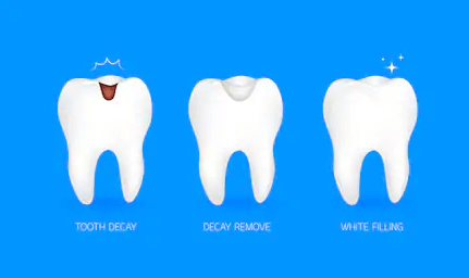 why white fillings