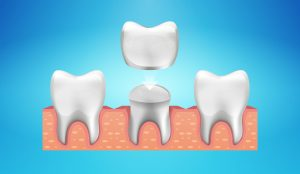 Dental Crown Resotaration