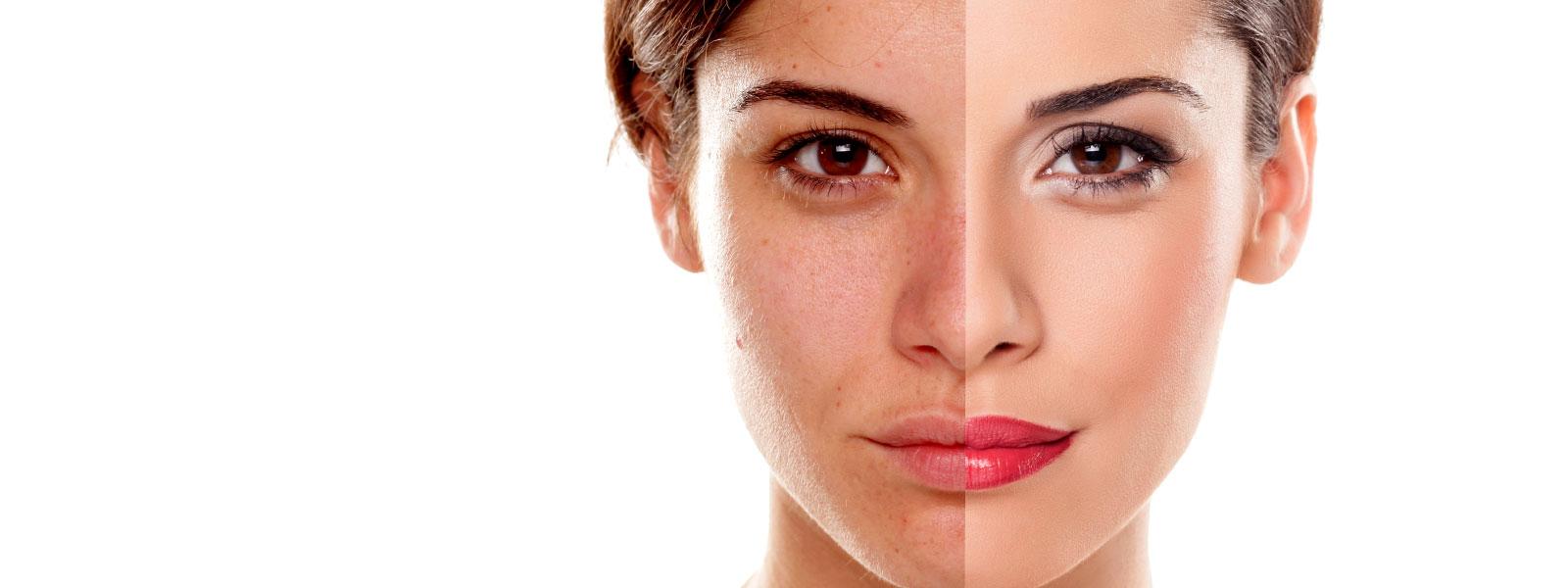 Dermatoloji Uzmanlığı Nedir, Neleri Kapsar?