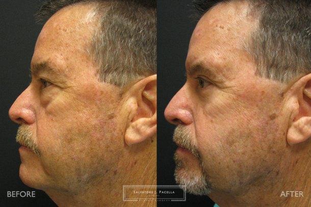 San Diego | La Jolla | Carmel Valley | Del Mar | Encinitas | Plastic Surgery | Cosmetic Surgery | Eyelid Expert | Eyelid Surgery | Eye Bags | Browlift | Blepharoplasty | Oculoplastic Surgery | Facial Rejuvenation | Top Plastic Surgeon