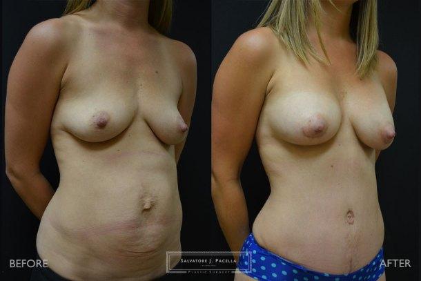 San Diego | La Jolla | Carmel Valley | Del Mar | Encinitas | Plastic Surgery | Body Contouring | Tummy Tuck | Mommy Makeover | Boob Job | Breast Augmentation | Top Plastic Surgeon