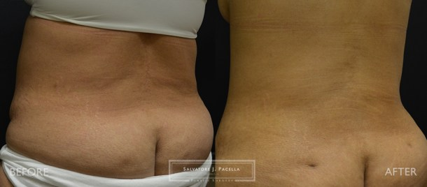 San Diego | La Jolla | Carmel Valley | Del Mar | Encinitas | Plastic Surgery | Body Contouring | Tummy Tuck | Liposuction | Abdominoplasty | Top Plastic Surgeon | Body Contouring