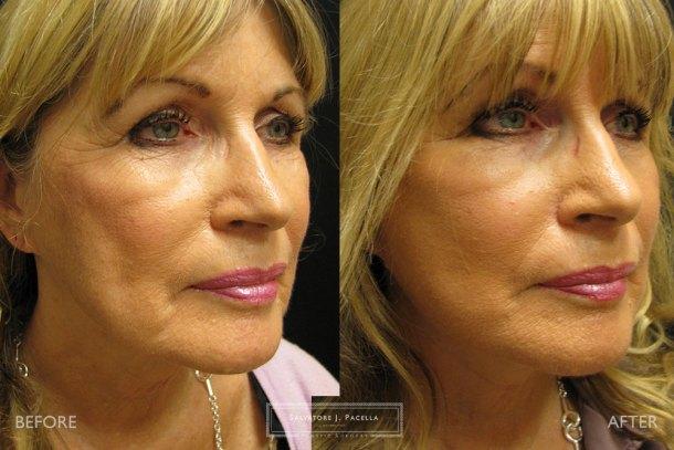 San Diego | La Jolla | Carmel Valley | Del Mar | Encinitas | Plastic Surgery | Cosmetic Surgery  | Facelift | Minilift | Cheeklift | Browlift | Fat Transfer | Facial Rejuvenation | Top Plastic Surgeon