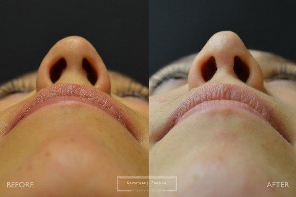 San Diego | La Jolla | Carmel Valley | Del Mar | Encinitas | Plastic Surgery | Cosmetic Surgery | Nose Job | Chin Implant | Top Plastic Surgeon | Scripps Plastic Surgeon | Rhinoplasty