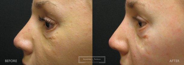 Eyelid expert | oculoplastic | ectropion | plastic surgery | Scripps plastic surgery | La Jolla | Carmel Valley | Del Mar | San Diego