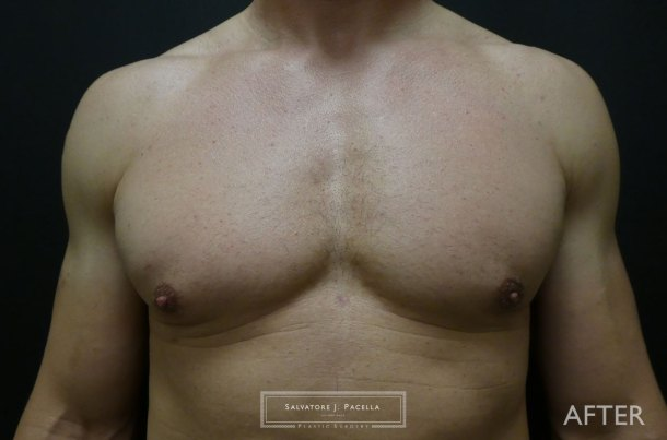 San Diego | La Jolla | Carmel Valley | Del Mar | Plastic Surgery | Gynecomastia | Male Breast Reduction | Top Plastic Surgeon | Scripps Plastic Surgeon