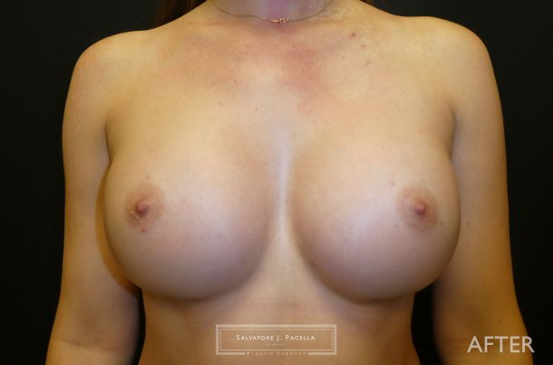 San Diego | La Jolla | Carmel Valley |Del Mar | Encinitas | Plastic Surgery | Cosmetic Surgery | Breast Augmentation San Diego | Boob Job | Breast Implants San Diego | MemoryGel | Silicone Breast | Natural Breast shape | Moderate Profile | Silicone vs Saline | Gummy Bear Implant | Mentor Breast Implants | Silicone Breast implants