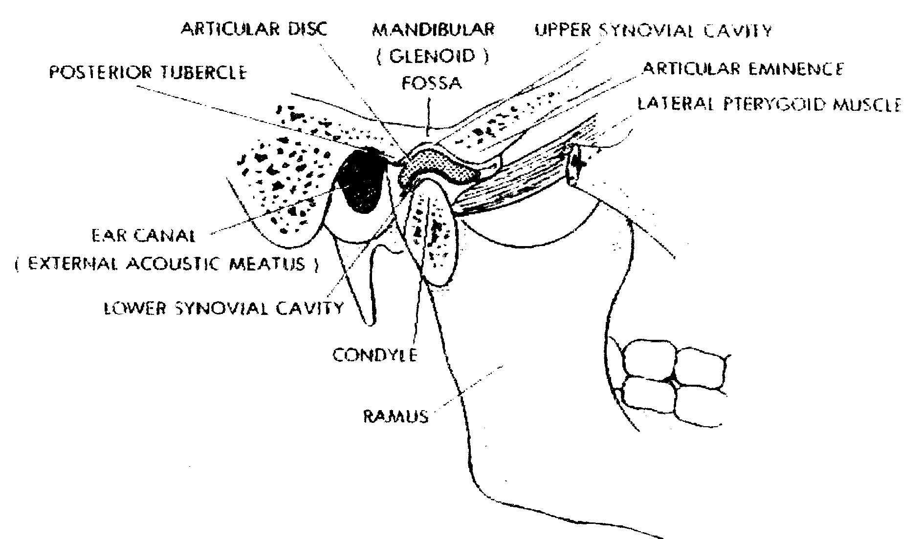 Transitory Relief For Tmj Pain Natural Tmj Relief