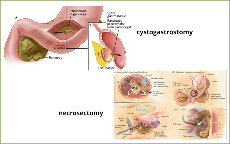 Laparoscopic Surgery Crohns Disease