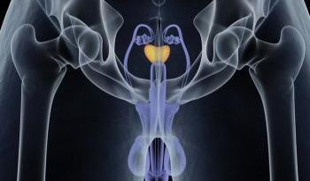 BPH prostate gland