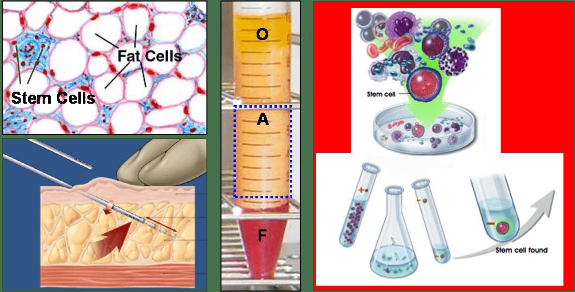 20歳の女性より提供された脂肪幹細胞を培養増殖させ成長因子を製剤化