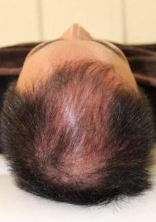 薄毛の発毛治療HARG療法 前
