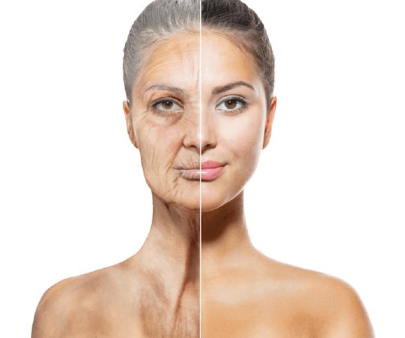 エイジングケア・老化対策