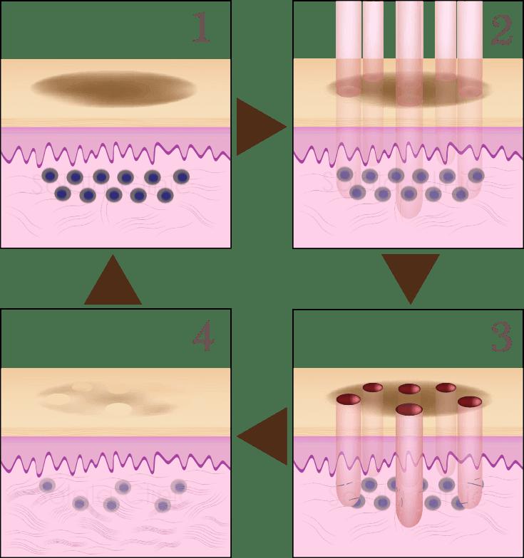 ルビーフラクショナル 照射の図02