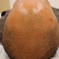 PDRN育毛治療を行なう前の症例写真