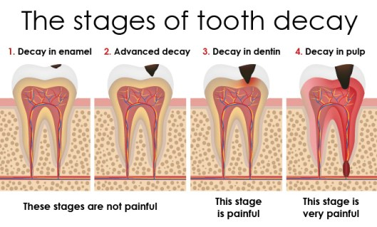Image result for tooth decay