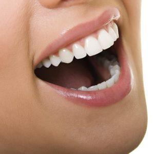 stomatologie râmnicu sărat Stomatologie Râmnicu Sărat – Dr. State ESTETICA DENTARA e1580046119610