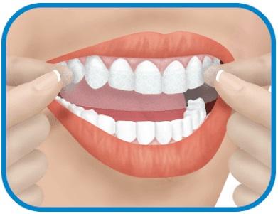 Albirea dentară albirea dentară Albirea dentară – Soluții pentru o dantură strălucitoare albire dinti