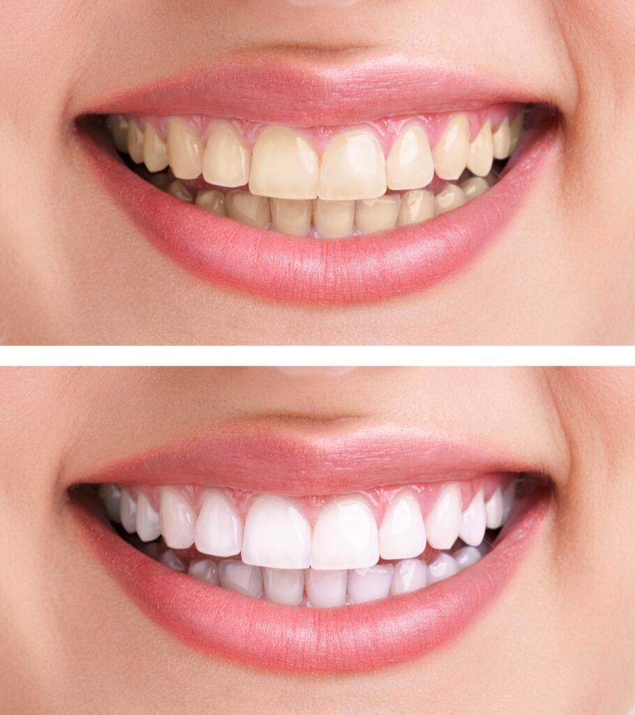 Albirea dentară albirea dentară Albirea dentară – Soluții pentru o dantură strălucitoare inalbire dinti 910x1024
