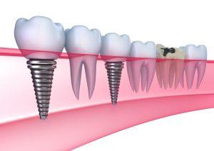 implanturile dentare dentist ramnicu sarat implantul dentar Implantul dentar – Avantaje implanturile dentare dentist ramnicu sarat