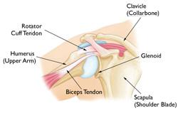 shoulder instablility