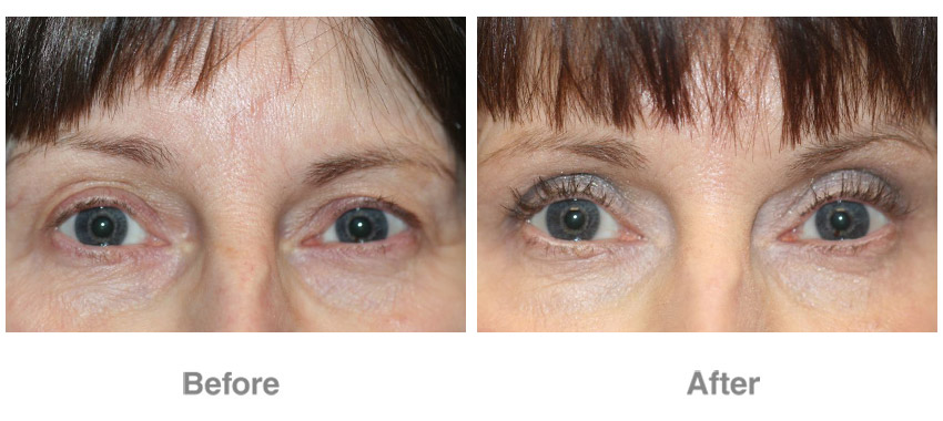 Eye Cosmetic Surgery Patient 3 Individual Results May Vary