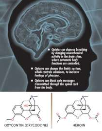 Image of brain along with oxycontin and heroin chemical structures