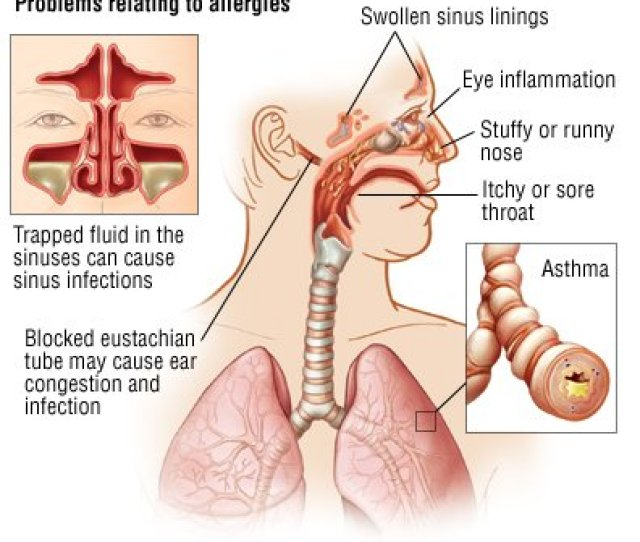 Hay Fever Allergic Rhinitis