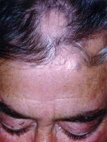 Hair Loss Guide Causes Symptoms And Treatment Options