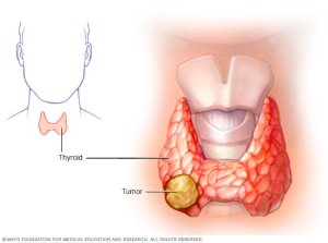 Thyroid cancer Disease Reference Guide  Drugs