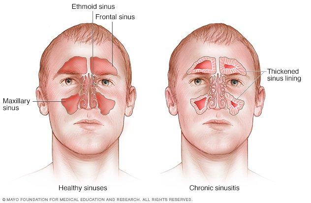 Image Result For Sinus Allergy Symptoms