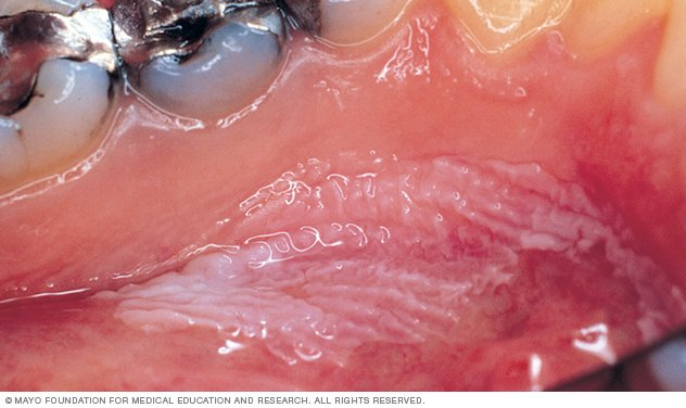 Roof Thrush Mouth Sore
