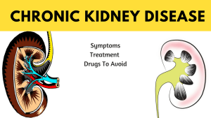 Chronic Kidney Disease: Symptoms, Treatment, And Medicine To Avoid